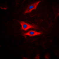 Anti-PLA2G4A (phospho Ser505) antibody used in Immunocytochemistry/ Immunofluorescence (ICC/IF). GTX32342