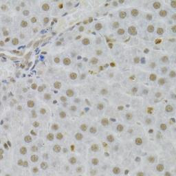 Anti-14-3-3 sigma antibody used in IHC (Paraffin sections) (IHC-P). GTX32418