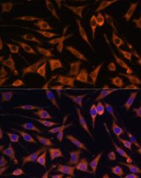 Anti-ACAT2 antibody used in Immunocytochemistry/ Immunofluorescence (ICC/IF). GTX32422