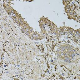 Anti-ALDH1A1 antibody used in IHC (Paraffin sections) (IHC-P). GTX32431