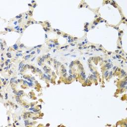 Anti-Bax antibody used in IHC (Paraffin sections) (IHC-P). GTX32465
