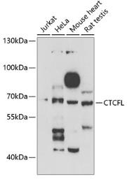Anti-BORIS antibody used in Western Blot (WB). GTX32476
