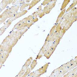 Anti-CALCB antibody used in IHC (Paraffin sections) (IHC-P). GTX32484