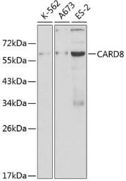 Anti-CARD8 antibody used in Western Blot (WB). GTX32488