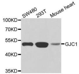 Anti-Connexin 45 antibody used in Western Blot (WB). GTX32532