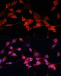 Anti-DDB1 antibody used in Immunocytochemistry/ Immunofluorescence (ICC/IF). GTX32555