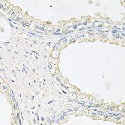 Anti-EPO receptor antibody used in IHC (Paraffin sections) (IHC-P). GTX32590