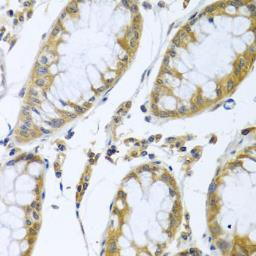 Anti-FBXL5 antibody used in IHC (Paraffin sections) (IHC-P). GTX32599