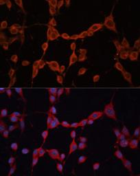 Anti-G protein alpha 13 antibody used in Immunocytochemistry/ Immunofluorescence (ICC/IF). GTX32613