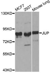 Anti-gamma Catenin antibody used in Western Blot (WB). GTX32619