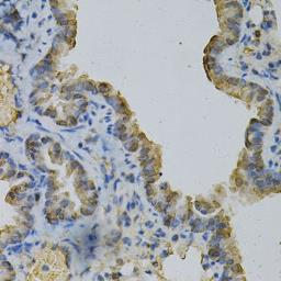 Anti-Glutamine synthetase antibody used in IHC (Paraffin sections) (IHC-P). GTX32627