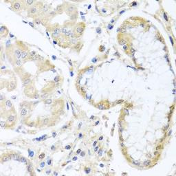 Anti-SKIP antibody used in IHC (Paraffin sections) (IHC-P). GTX32681