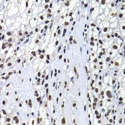 Anti-Macro H2A.1 antibody used in IHC (Paraffin sections) (IHC-P). GTX32709
