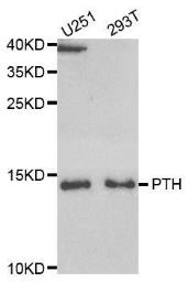 Anti-Parathyroid Hormone antibody used in Western Blot (WB). GTX32772