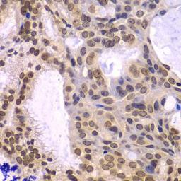Anti-POLD3 antibody used in IHC (Paraffin sections) (IHC-P). GTX32795