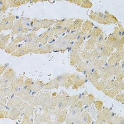 Anti-PPA1 antibody used in IHC (Paraffin sections) (IHC-P). GTX32802