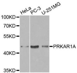 Anti-PKA I alpha reg antibody used in Western Blot (WB). GTX32809
