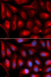 Anti-PSMA5 antibody used in Immunocytochemistry/ Immunofluorescence (ICC/IF). GTX32817
