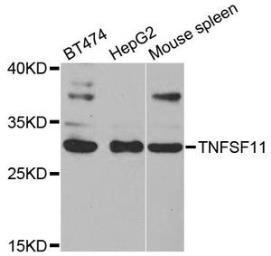 Anti-RANKL antibody used in Western Blot (WB). GTX32834