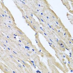 Anti-RCN2 antibody used in IHC (Paraffin sections) (IHC-P). GTX32836