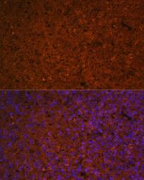Anti-SLAMF7 antibody used in IHC (Paraffin sections) (IHC-P). GTX32876