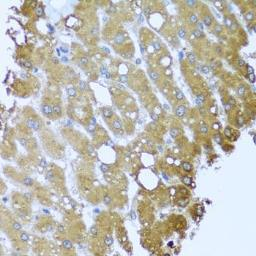 Anti-Striatin antibody used in IHC (Paraffin sections) (IHC-P). GTX32902
