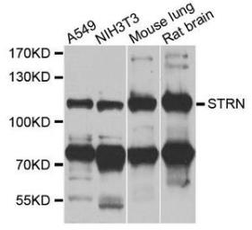 Anti-Striatin antibody used in Western Blot (WB). GTX32902