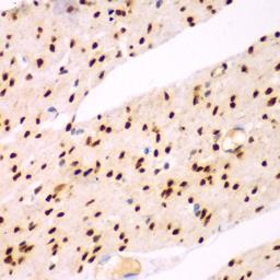 Anti-TEAD3 antibody used in IHC (Paraffin sections) (IHC-P). GTX32917