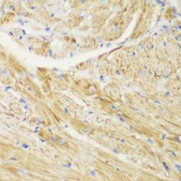 Anti-TOMM20 antibody used in IHC (Paraffin sections) (IHC-P). GTX32928