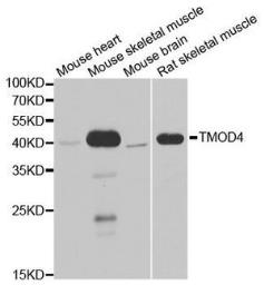 Anti-Tropomodulin 4 antibody used in Western Blot (WB). GTX32937