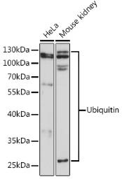 Anti-Ubiquitin B antibody used in Western Blot (WB). GTX32946
