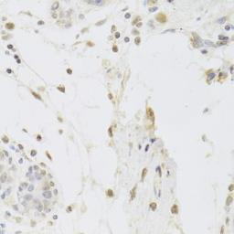 Anti-USP7 antibody used in IHC (Paraffin sections) (IHC-P). GTX32957
