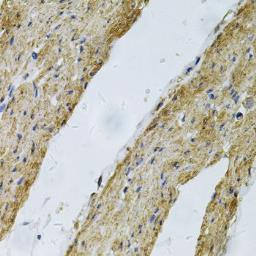 Anti-Vinculin antibody used in IHC (Paraffin sections) (IHC-P). GTX32965
