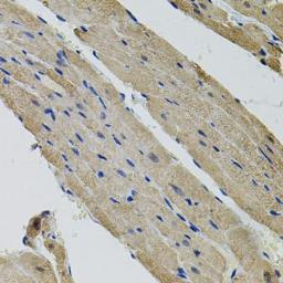 Anti-ALDH9A1 antibody used in IHC (Paraffin sections) (IHC-P). GTX33000