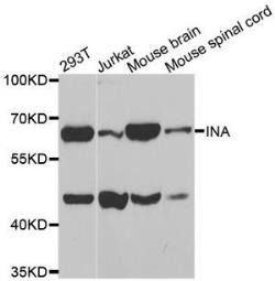 Anti-alpha Internexin antibody used in Western Blot (WB). GTX33004