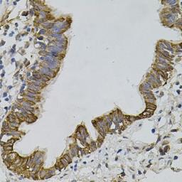 Anti-ARHGEF11 antibody used in IHC (Paraffin sections) (IHC-P). GTX33017