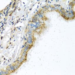 Anti-ATPIF1 antibody used in IHC (Paraffin sections) (IHC-P). GTX33029