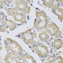 Anti-BPGM antibody used in IHC (Paraffin sections) (IHC-P). GTX33041
