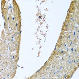 Anti-COX5B antibody used in IHC (Paraffin sections) (IHC-P). GTX33114