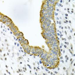 Anti-Cytokeratin 5 antibody used in IHC (Paraffin sections) (IHC-P). GTX33140