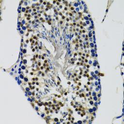 Anti-DDX41 antibody used in IHC (Paraffin sections) (IHC-P). GTX33151