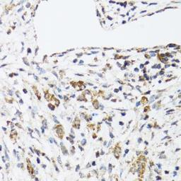 Anti-DHRS2 antibody used in IHC (Paraffin sections) (IHC-P). GTX33152