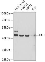 Anti-Fumarylacetoacetate hydrolase antibody used in Western Blot (WB). GTX33205