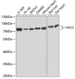 Anti-HAS3 antibody used in Western Blot (WB). GTX33235