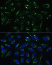 Anti-ERAB antibody used in Immunocytochemistry/ Immunofluorescence (ICC/IF). GTX33249