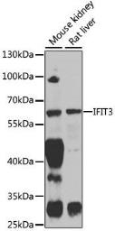 Anti-IFIT3 antibody used in Western Blot (WB). GTX33255