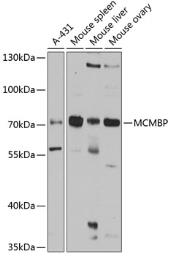 Anti-MCMBP antibody used in Western Blot (WB). GTX33311
