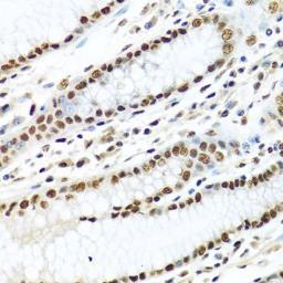 Anti-METTL3 antibody used in IHC (Paraffin sections) (IHC-P). GTX33315