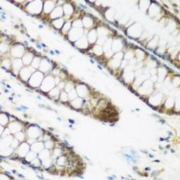 Anti-NCBP2 antibody used in IHC (Paraffin sections) (IHC-P). GTX33345