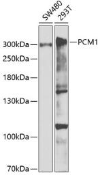 Anti-PCM1 antibody used in Western Blot (WB). GTX33391